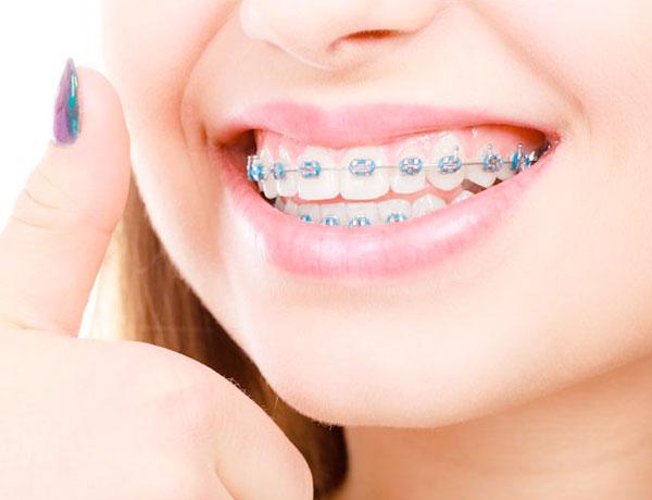 HOT 2021   Cập nhật bảng giá bọc răng sứ mới nhất hiện nay