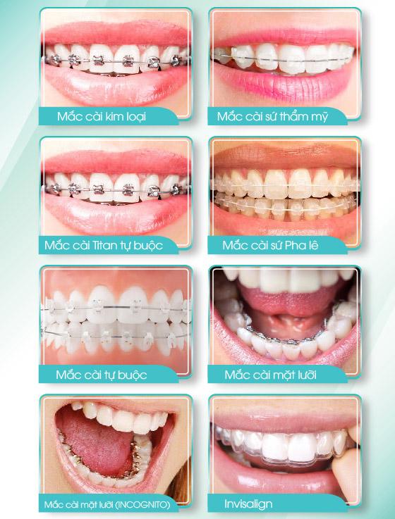 thời gian niềng răng bao lâu thì có kết quả, niềng răng bao lâu thì xong, thời gian niềng răng bao lâu, niềng răng bao lâu thì có kết quả, niềng răng bao lâu thì tháo