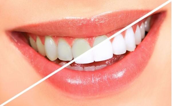 Cách chữa vôi răng tại nhà hiệu quả và an toàn nhất