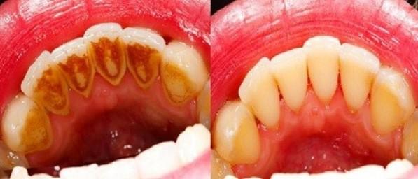 cách chữa vôi răng, cách điều trị vôi răng, cách chữa bệnh vôi răng, cách chữa trị vôi răng