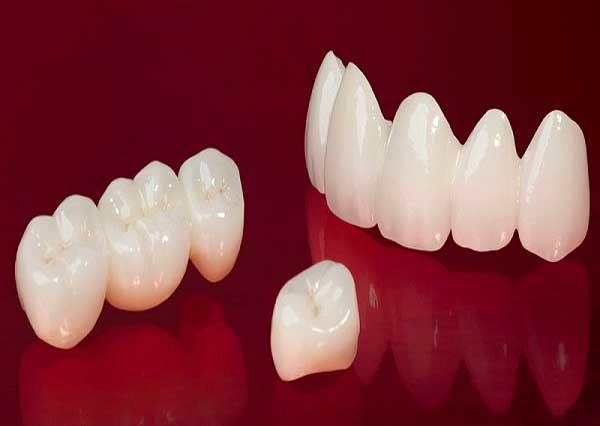 răng sứ venus giá bao nhiêu, giá răng sứ venus, răng toàn sứ venus giá bao nhiêu, bảng giá răng sứ venus, rang su gia bao nhieu, bọc răng sứ venus giá bao nhiêu, sứ venus giá bao nhiêu, răng sứ venus giá, giá làm răng sứ venus, răng sứ venus giá bao nhiêu tiền một cái, bọc răng sứ venus có tốt không, có nên bọc răng sứ venus, giá bọc răng sứ venus, giá tiền răng sứ venus, đánh giá răng sứ venus