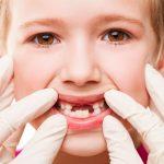 Chữa sâu răng cho trẻ 4 tuổi đúng để không ảnh hưởng răng miệng bé sau này