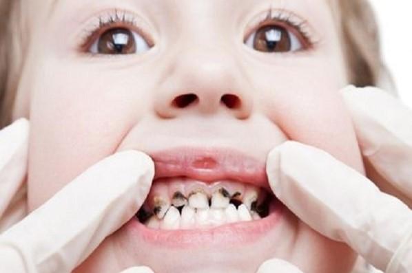 chữa sâu răng cho trẻ 4 tuổi, chữa sâu răng cho bé 4 tuổi, cách chữa sâu răng cho trẻ 4 tuổi