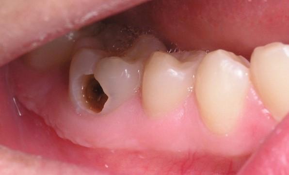 Chữa sâu răng hàm giá bao nhiêu, chi phí chữa sâu răng hàm