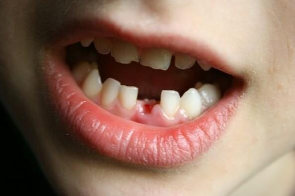 Giải mã nằm mơ thấy mình tự nhổ răng của mình  đánh con gì?