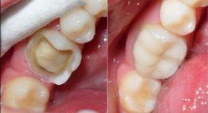Mẻ răng hàm nên bọc sứ hay trám