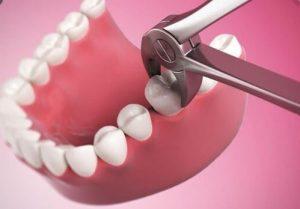 nhổ răng hàm có ảnh hưởng gì, nhổ răng hàm có ảnh hưởng gì không, nhổ răng hàm có ảnh hưởng gì ko, nhổ răng hàm dưới có ảnh hưởng gì không, nhổ răng hàm trên có ảnh hưởng gì không, nhổ răng cấm hàm dưới có ảnh hưởng gì không, nhổ răng khôn hàm dưới có ảnh hưởng gì không, nhổ răng khôn hàm trên có ảnh hưởng gì không