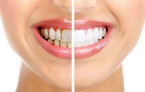 tẩy trắng răng có tốt không, tẩy trắng răng laser có tốt không, tẩy trắng răng có tốt hay không, tẩy trắng răng nhiều có tốt không
