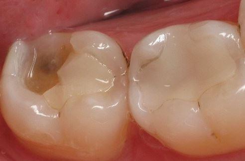 [ Tư vấn nha khoa ] Mẻ răng hàm nên bọc sứ hay trám?