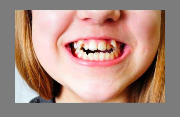 xem tướng con trai có răng khểnh, răng khểnh bên nào đẹp, răng khểnh, răng khểnh nam, răng khểnh 1 bên, răng khểnh 2 bên, con trai răng khểnh, con trai có răng khểnh, răng khểnh là gì, trai răng khểnh, răng khểnh trong tướng số, răng khểnh, con trai người có răng khểnh, người có hai răng khểnh, đàn ông răng khểnh, răng khểnh 2 bên nam, con trai có 2 răng khểnh, người có răng khểnh nói lên điều gì, răng khểnh con trai, con trai răng khểnh thì sao nhỉ