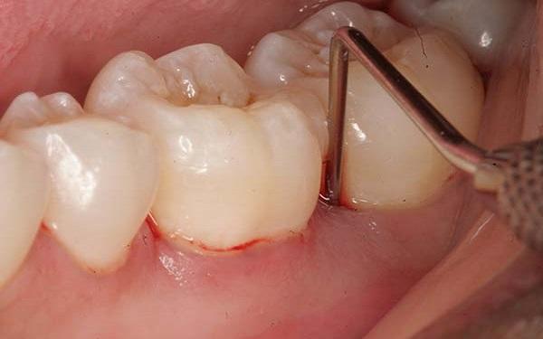 Sưng bọng răng hàm là gì và cách điều trị như thế nào cho hiệu quả?