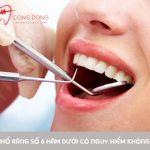 Nhổ răng số 6 hàm dưới có nguy hiểm không và những điều cần lưu ý