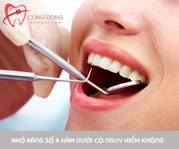 Nhổ răng số 6 hàm dưới có nguy hiểm không