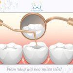 Bảng giá trám răng 2021 |Chi phí trám răng giá bao nhiêu tiền?