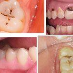 [ Tư vấn nha khoa ] Chữa sâu răng hàm giá bao nhiêu?
