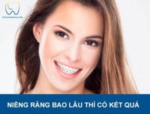 Tư vấn nha khoa | Niềng răng bao lâu thì có kết quả?